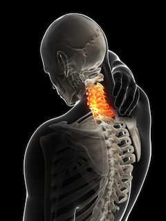 Diagram of Skeleton with Neck Pain